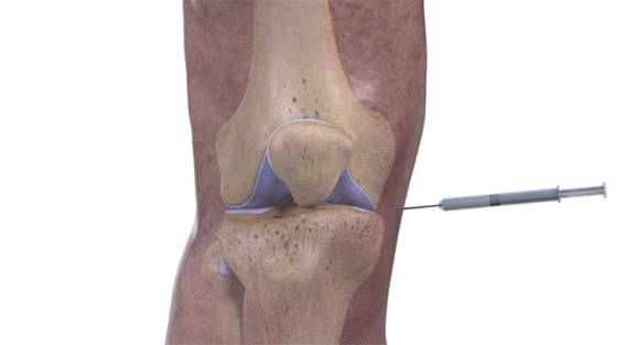 knee-cortisone